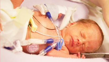 Neonatal Chronic Lung Disease
